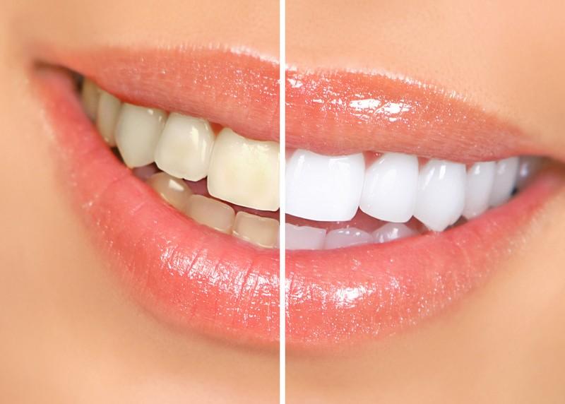 Teeth Whitening  Safety Harbor, FL